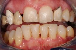 Patient with unesthetic old restorations and ugly teeth