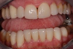 After replacing the old restorations and placing all ceramic crowns at the upper and lower
