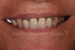 Old metal ceramic crowns, where a black line is visible next to the gums