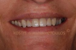 After replacing the old crowns with all ceramic crowns, WIth all ceramics we do not see the metal line next to the gums as there is no metal to show through.
