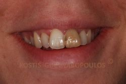 Single discolored tooth because of root canal and trauma. Old restorations are visible.