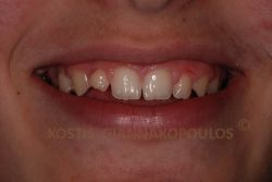 Fractured and crooked lateral incisor