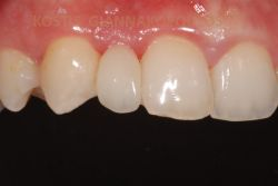 After the treatment that involved the placement of an all ceramic bridge with wings. This type of bridge requires minimum drilling of the abutment teeth