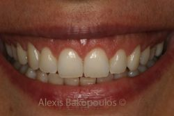 The smile of the patient after gingivoplasty
