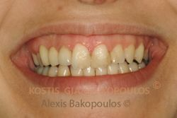 After gingival plastic surgery the harmony of the gingiva is restored and the teeth have better proportions
