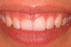 Gingival asymmetry and gummy smile
