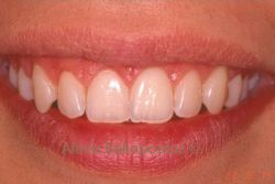 After gingival plastic surgery