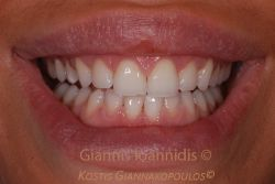 Healthy smile with relatively short teeth